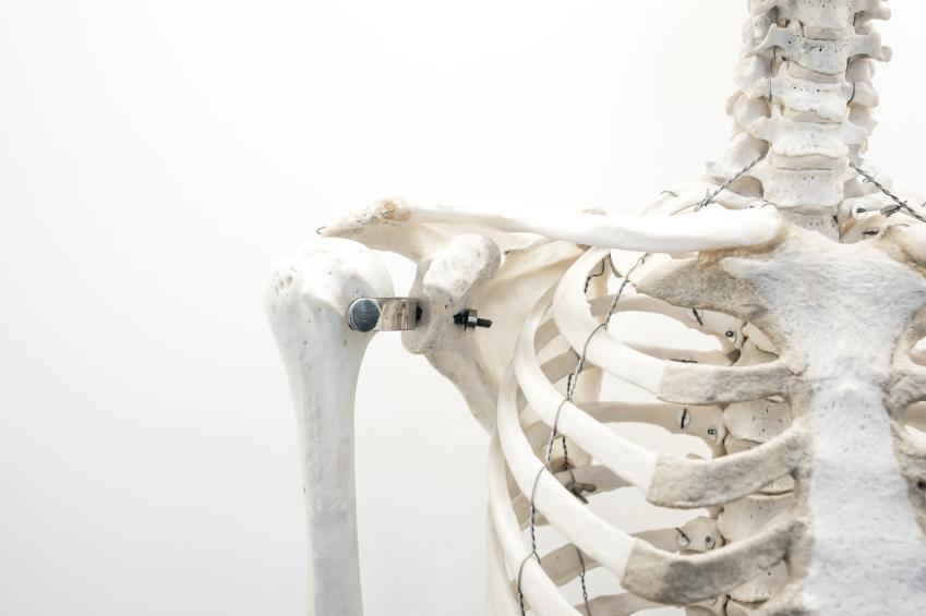 Lehet, hogy csontritkulása van, csak nem tud róla
