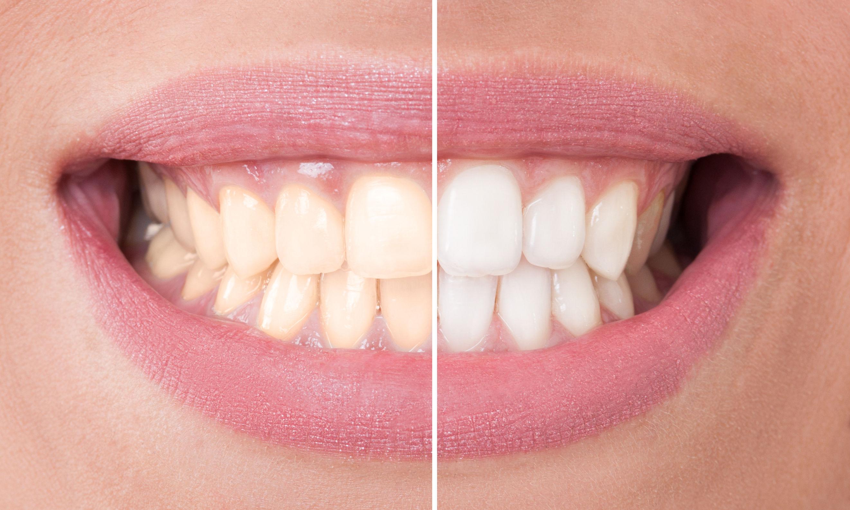 6 meglepő dolog, ami miatt nem elég fehér a fogad