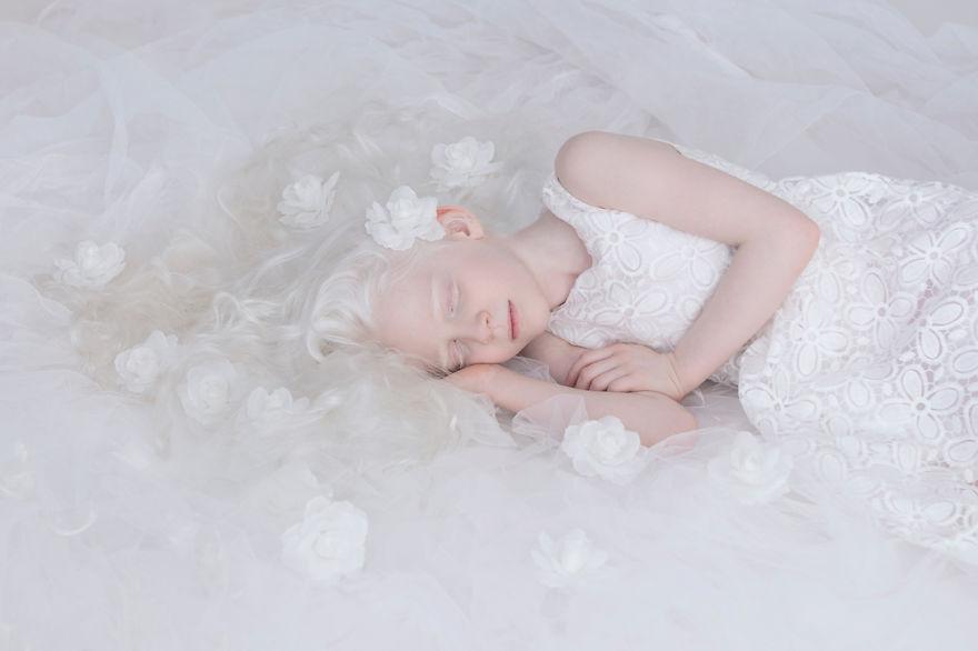 Az albínók csodálatos élete