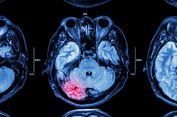 Te tudod mit kell tenni stroke esetén?
