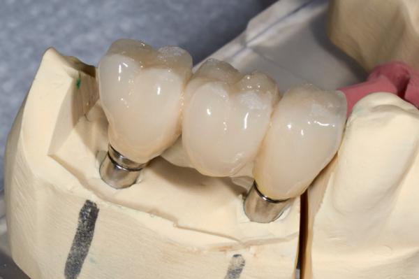 Hogyan pótoljuk elveszített fogainkat?