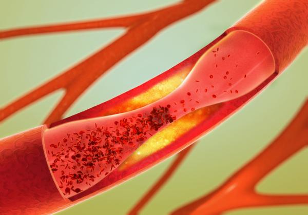Az életkor komoly rizikója a trombózisnak is!