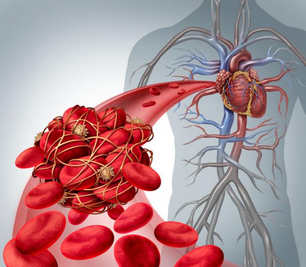 A trombózis okai és szövődményei