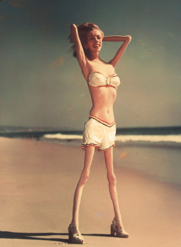 Anorexiás sztárok - Fotók!