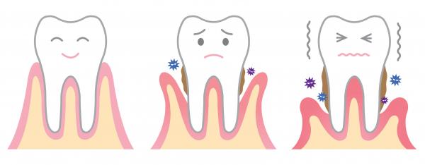 Sokakat érint a fogágybetegség