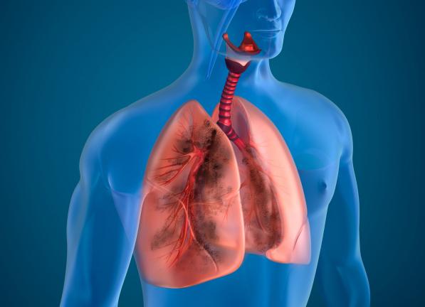 Egy nehezen felismerhető tüdőbetegség