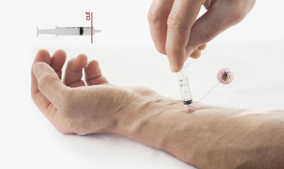 Maradandó károsodást okozhat a kullancsok csípése