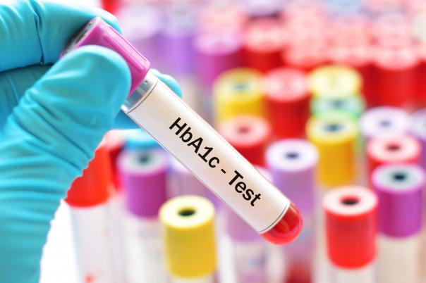 Mit mutat pontosan a HbA1c érték?