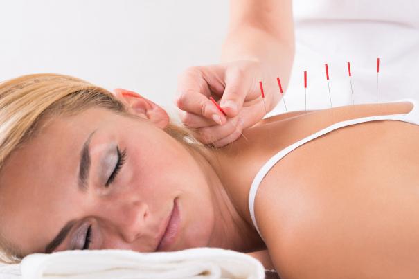 6 tévhit az akupunktúráról