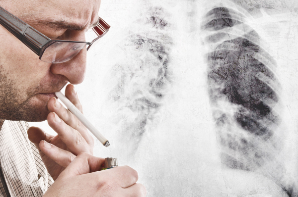 Melyik ráktípusba hal meg a legtöbb magyar?