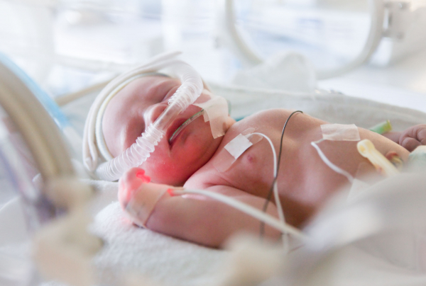 Egy 22 hétre született magzatnak is van esélye az életre