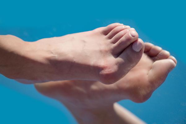 Fáj, amikor jár? A láb deformitásai