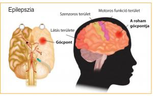 Tényleg gyógyítható az epilepszia?