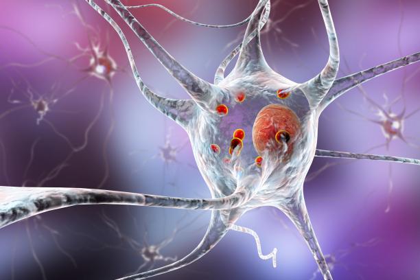 A Parkinson-kór  már születés előtt elkezdődhet