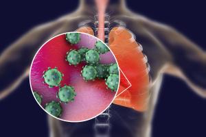 Gyorsabban terjed és halálosabb az influenzánál