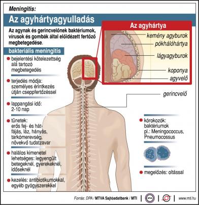Az agyhártyagyulladás elleni védőoltásról