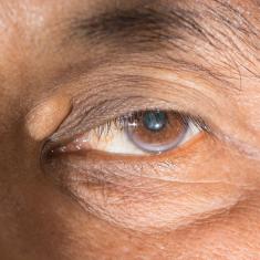 Sárgás lerakódások a szemnél? Mi lehet az ok?