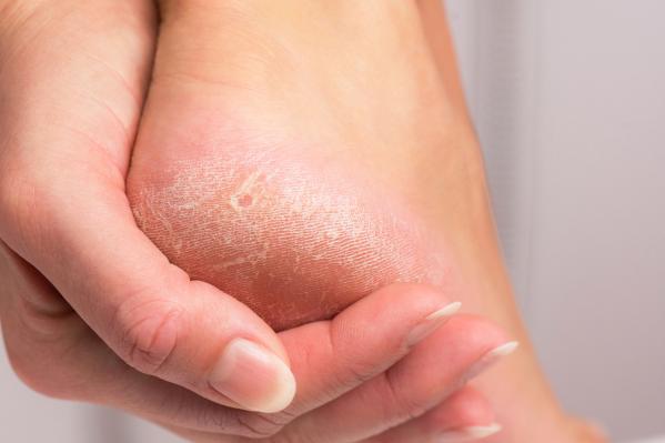 Hiperkeratosis: Amikor megvastagodik a bőr