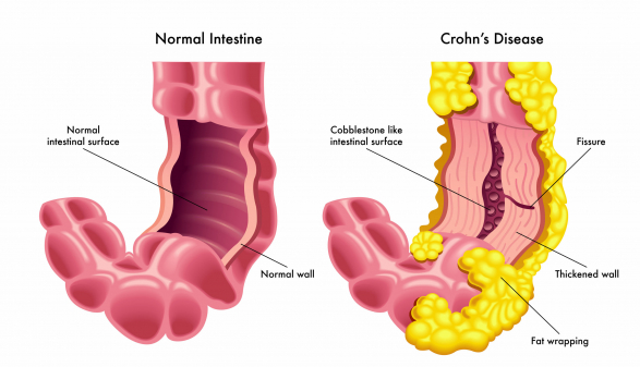 Ezek a tünetek Crohn-betegséget jelezhetnek