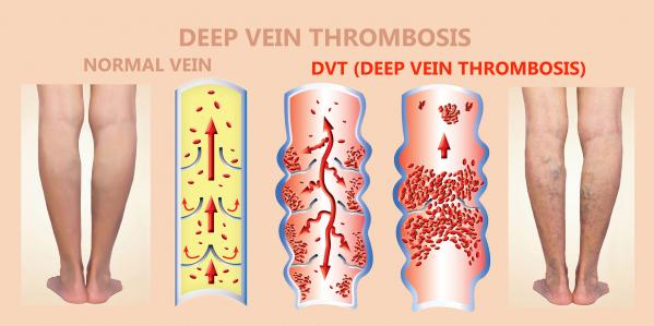 Előfordult a családjában trombózis?