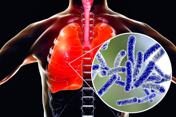 Légiós betegség: nyaralás után is jelentkezhet