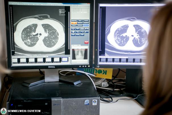 Központban a tüdő betegségei