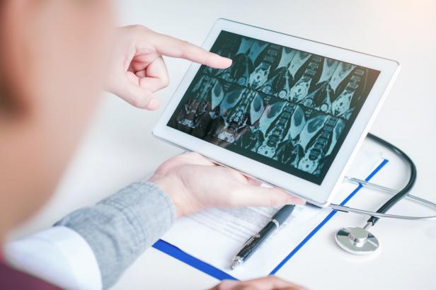 Sikeres a magyar tüdőtranszplantáció