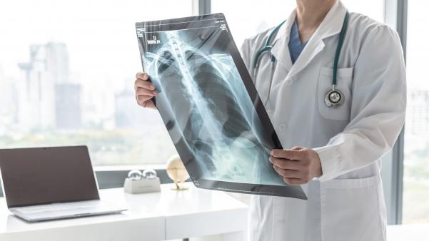 A tüdődaganatok korai stádiumban kimutatható
