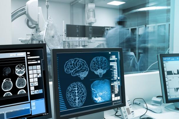 A migrén kutatásáért ítélték az Agy-díjat