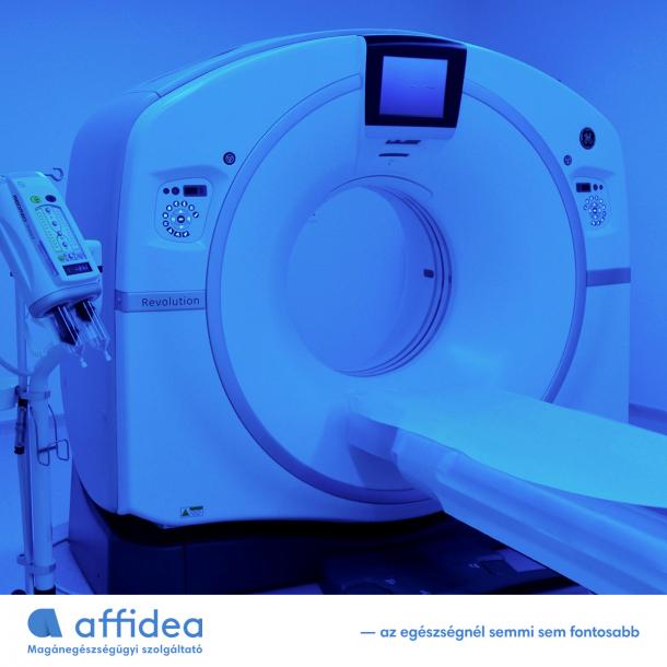 Ezt kell tudni a post-COVID tüdő CT-vizsgálatokról!