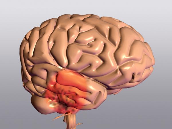 Parkinson-kór -amikor minden mozdulat célt téveszt...