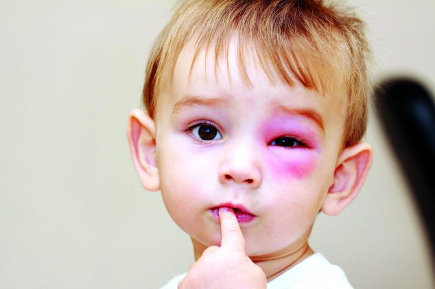 Súlyos allergiás reakciók felismerése