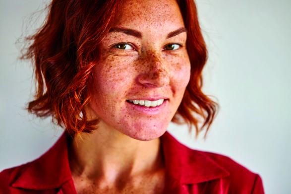 A fokozott pigmentáció mögött Addison-kór is állhat