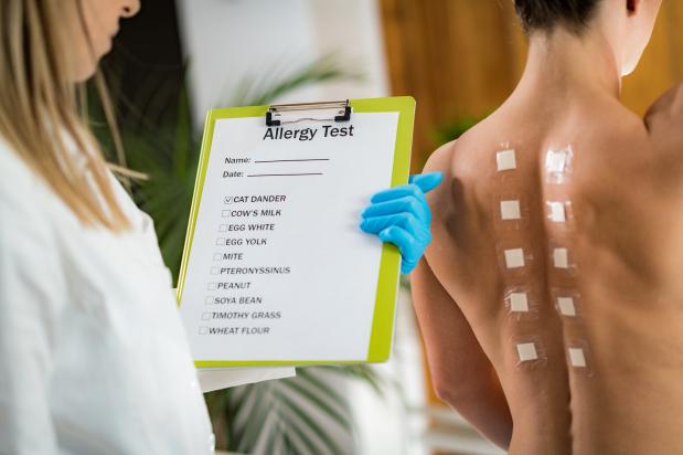 Mit érdemes tudni az első allergiavizsgálat előtt?