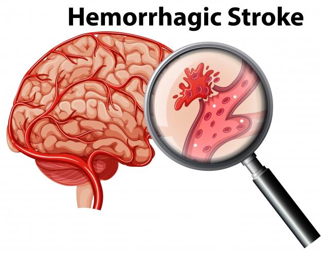 Egyre több a stroke-kal diagnosztizált koronavírusos