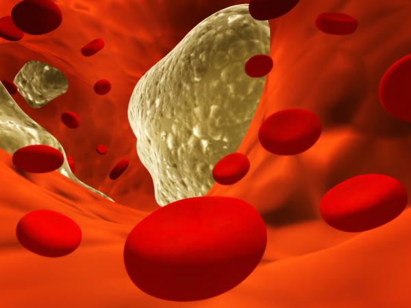 Trombózis: nem kell, hogy halálos legyen!