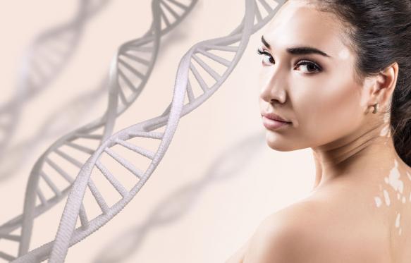 Vitiligo: a fényvédelem különösen fontos!