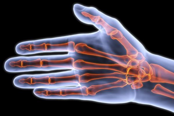 Csontvédelem