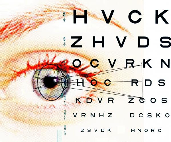 A retinaleválás