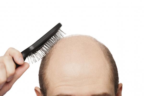 Hajjaj, csomókban hullik a haj!