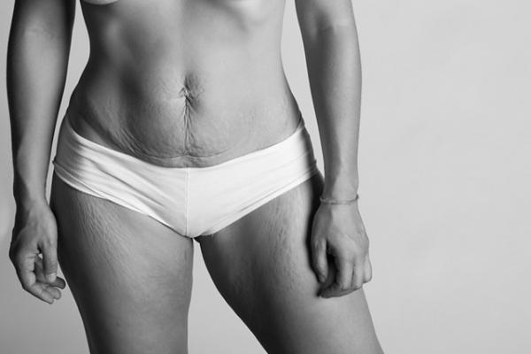 Így néz ki a női test szülés után