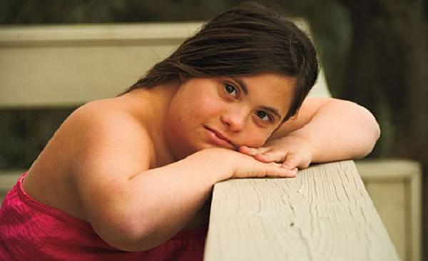 Mi okozza a Down-szindrómát?