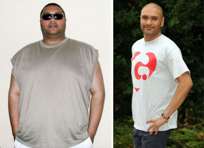 108 kilót fogyott - Annyira kövér volt, hogy nem bírt lélegezni