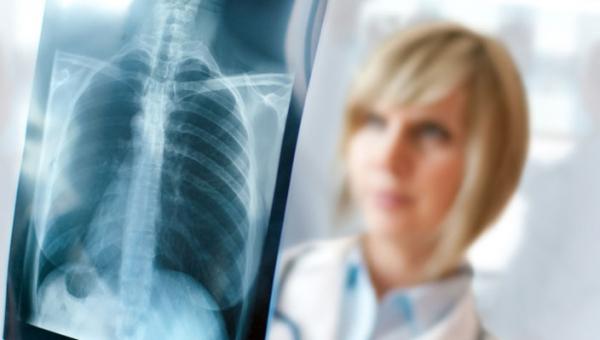 Tüdőgyulladás – Biztosan ismerjük a tüneteket?