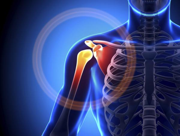 Csont lesz az implantátumból! - A vállfájdalom vége