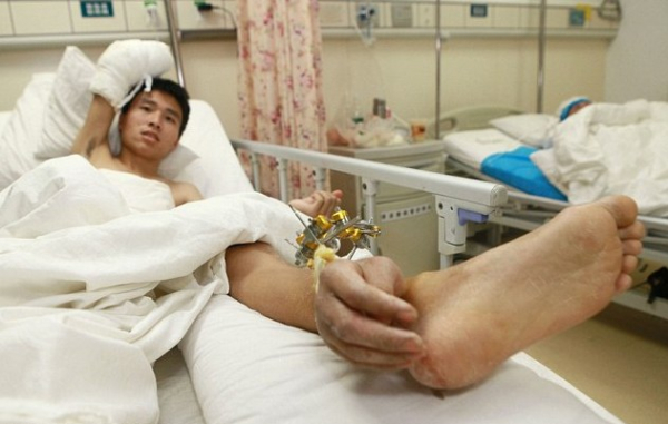 Egy hónapig a bokáján hordta levágott kezét
