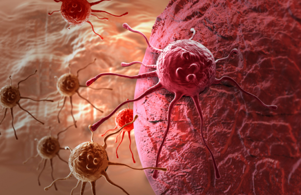 Így állítanák meg a rák terjedését