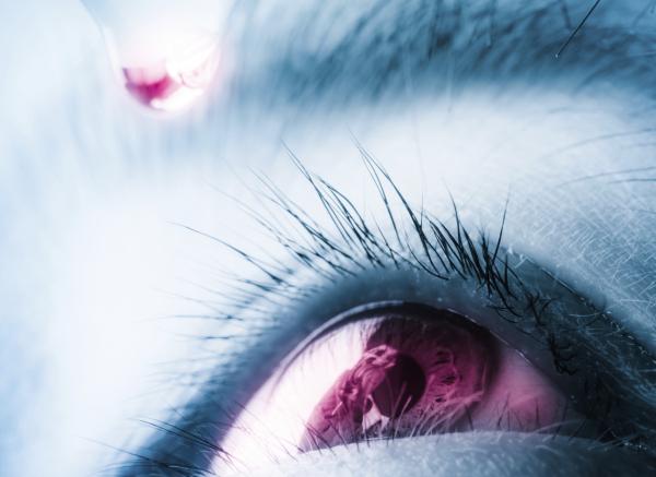 hogyan lehet fogyni a sjogren-szindrómán