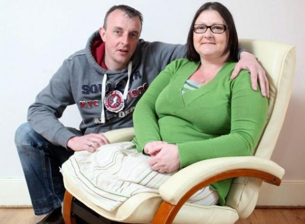 A dohányzás miatt vesztette el lábait a 41 éves nő