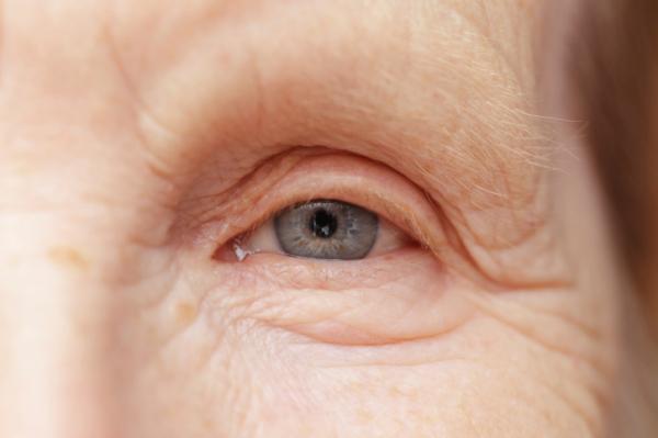 Új gyógymód a vakságot okozó időskori szembetegségre